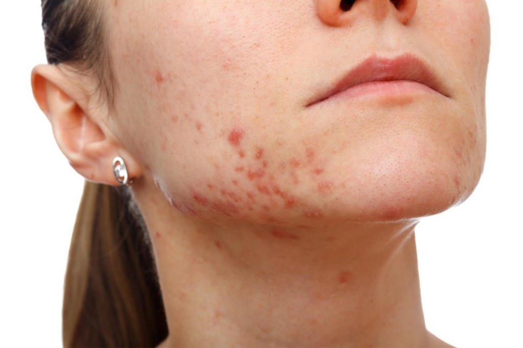 An adult with severe acne. Photo SUPPLIED/Acne and Rosacea Society of Canada.